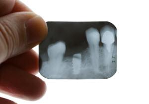 Riscos de rejeição em implantes dentários.