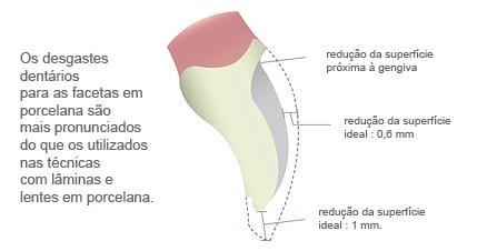 Problemas com facetas em porcelana : os desgastes dentários são mais pronunciados dos que os utilizados nas técnicas com lâminas ou lentes de contato dentais em porcelana.