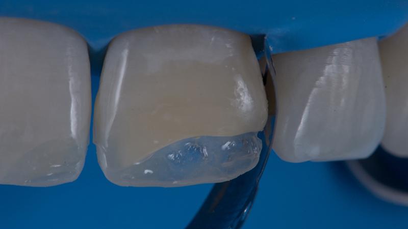 restauração em resina dentes pequenos