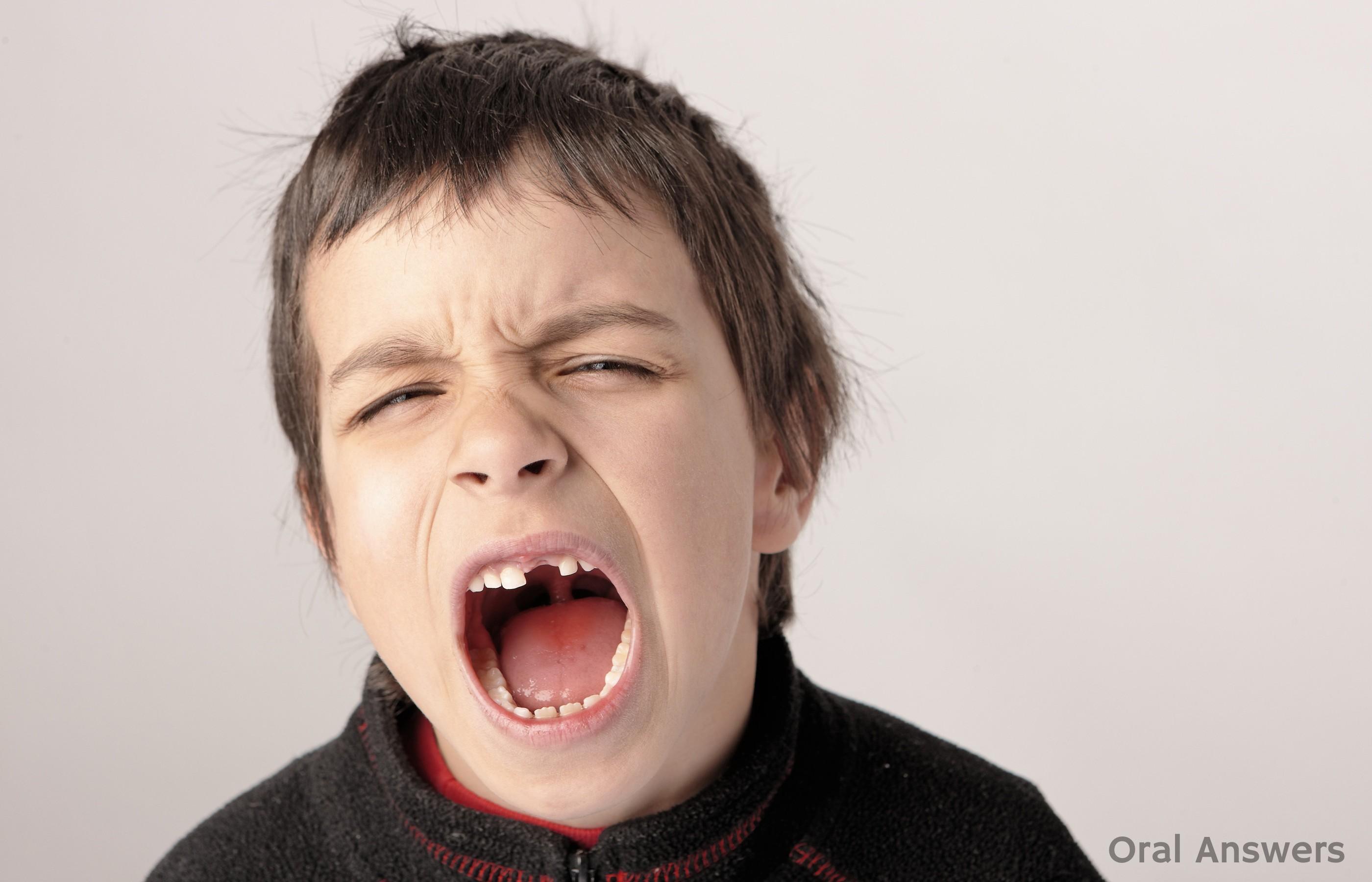 Crian 231 A Com O Dente Quebrado O Que Fazer Lu 237 S Gustavo