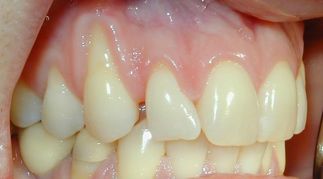 Retração severa presente em um canino superior e pré-molar inferior.