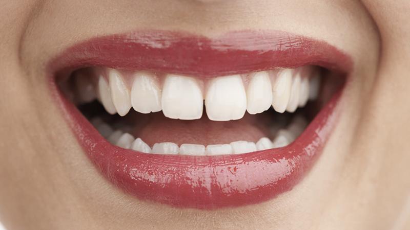 Diastemas, fechando espaços entre dentes com técnicas resolutivas. 4e94f2b872
