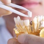 9 mitos sobre implantes dentários que você precisa conhecer.