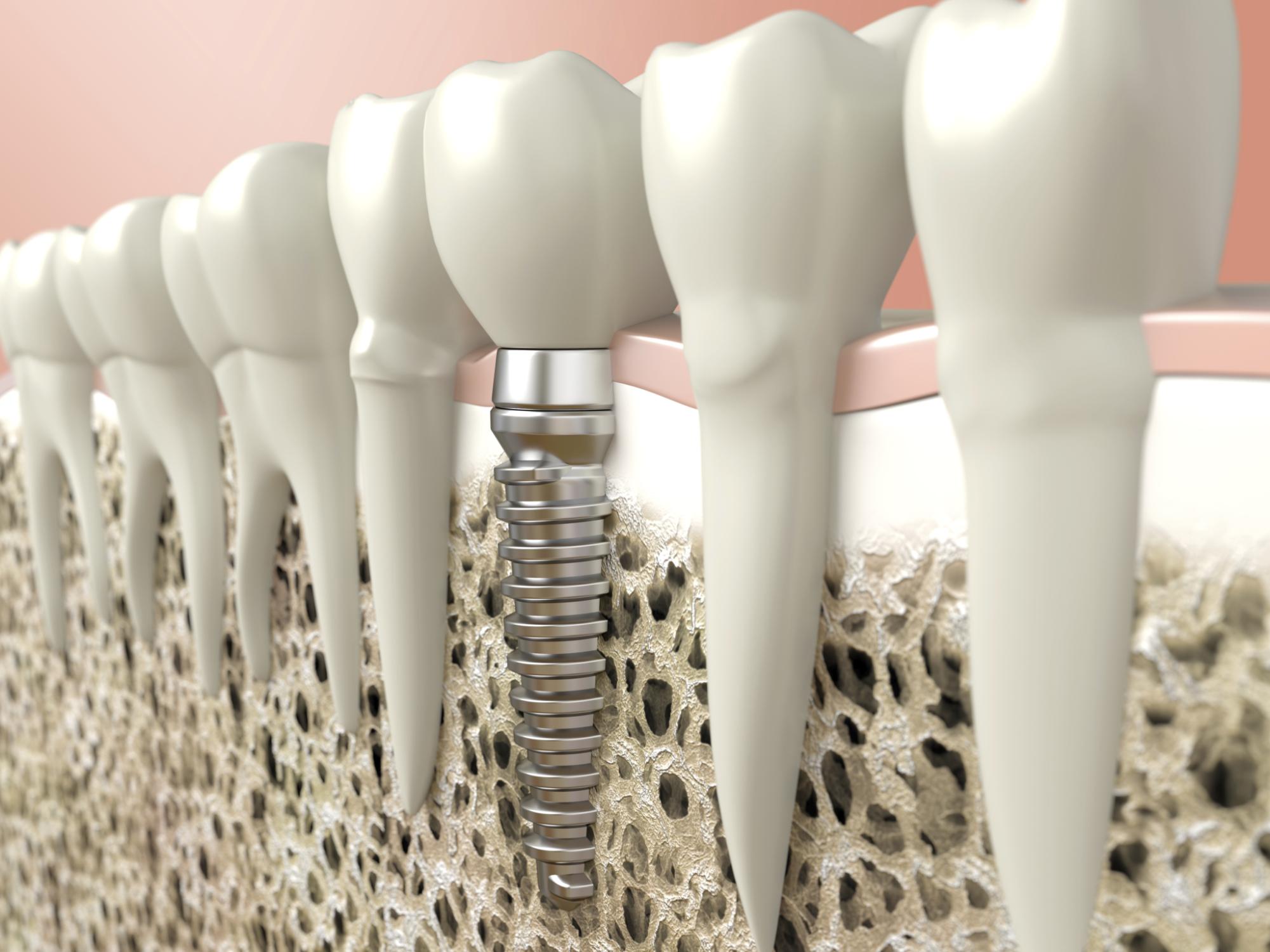 Implantes dentários. Simulação digital de um implante dentário unitário osseointegrado.