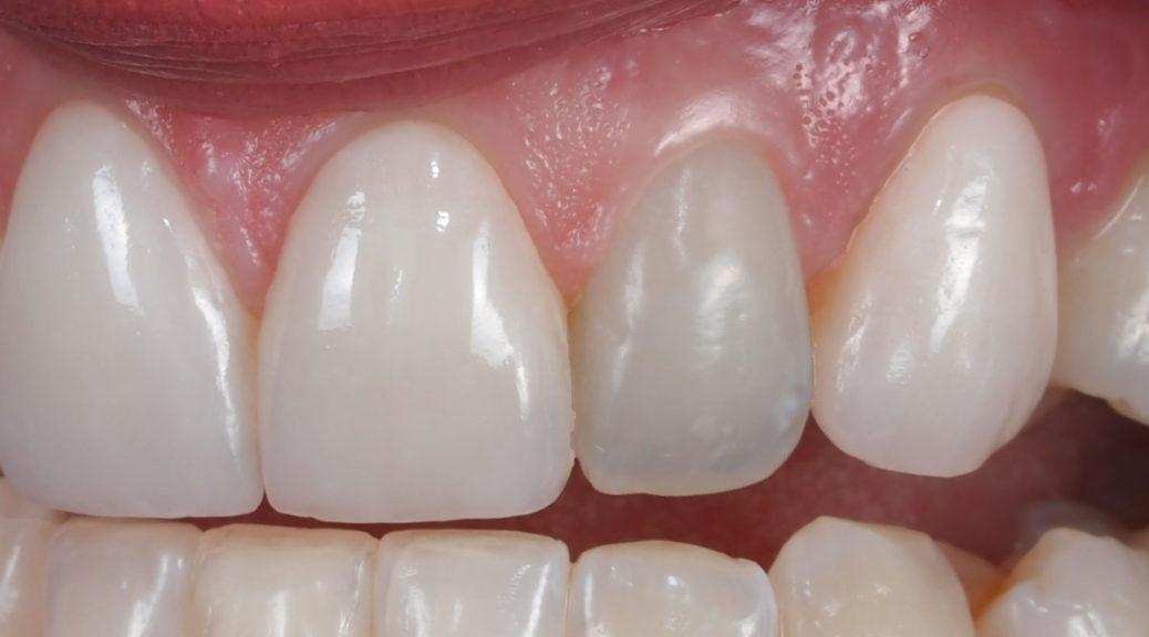 Dentes Escurecidos Apos Tratamento De Canal Como Clarea Los