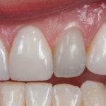 Dentes escurecidos após tratamento de canal. Como clareá-los?