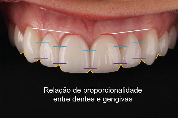 Harmonia : tudo é importante nos tratamentos com facetas em porcelana dentária.