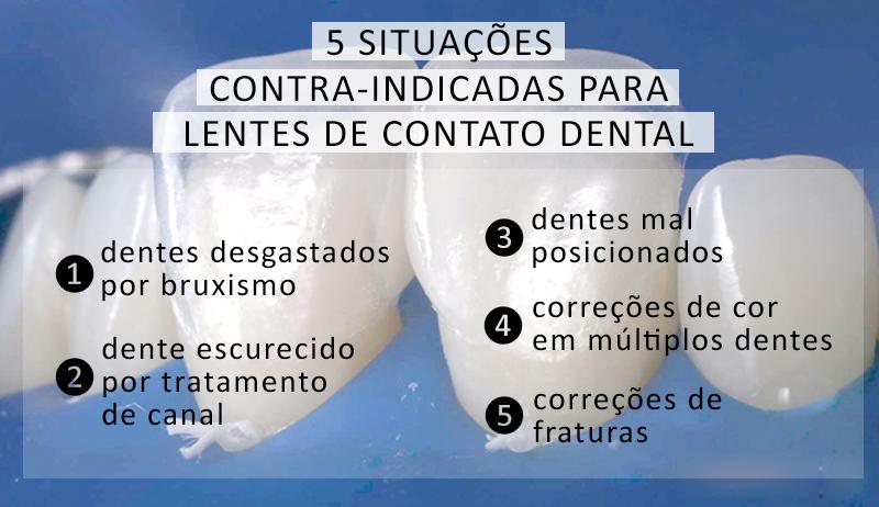 Lente de contato Dental : 5 situações de risco para o uso das lentes de contato dental em porcelana.