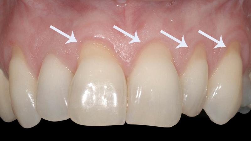 20 Mitos E Verdades Sobre Clareamento Dental Que Voce Precisa Saber