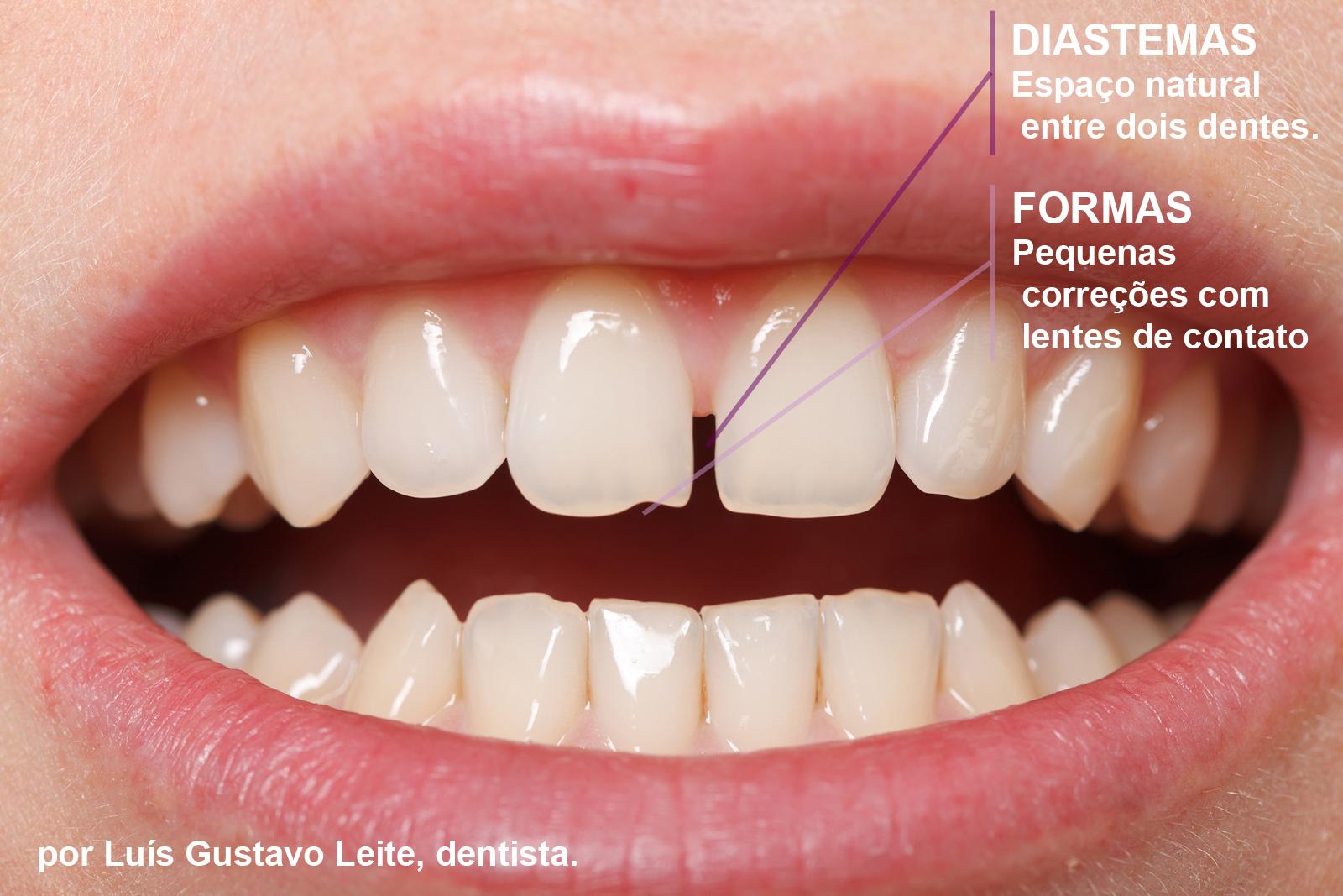 LENTE DE CONTATO DENTAL. Exemplo de indicação de solução conjunta de correção de diastema e correção de pequena falha de forma.