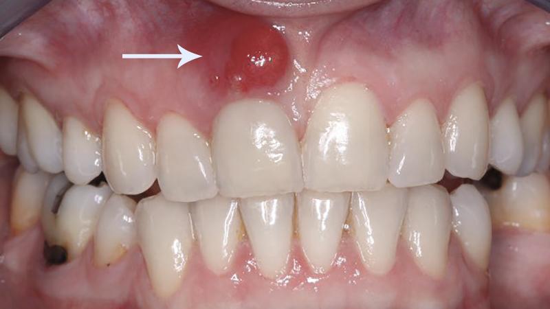 Dente quebrado o que fazer lesão periapical