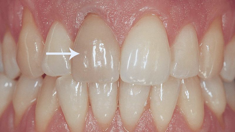 dente quebrado o que fazer escurecimento canal