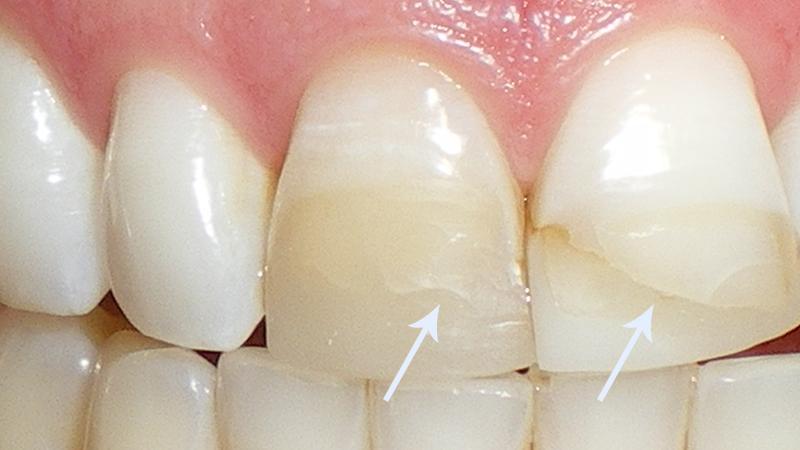 dente quebrado o que fazer restauração incorreta