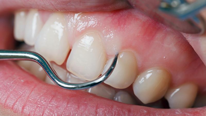 655f0f328 Cirurgia plástica periodontal para retração da gengiva  guia do paciente.