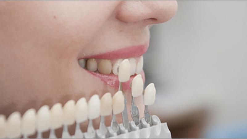 10-dicas-facetas-e-laminas-lentes-de-contato-dental