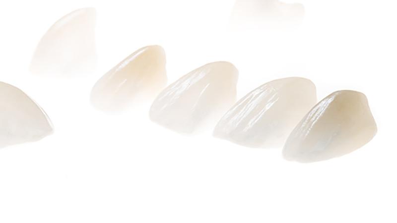 Facetas e Lâminas em Porcelana : sofisticação na reprodução de detalhes como translucidez e texturas.