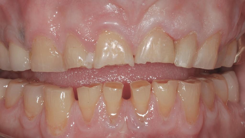 Bruxismo e recuperação de dentes desgastados #6