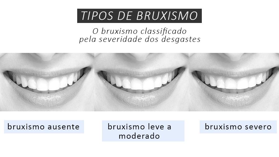 Bruxismo e recuperação de dentes desgastados padrao #2