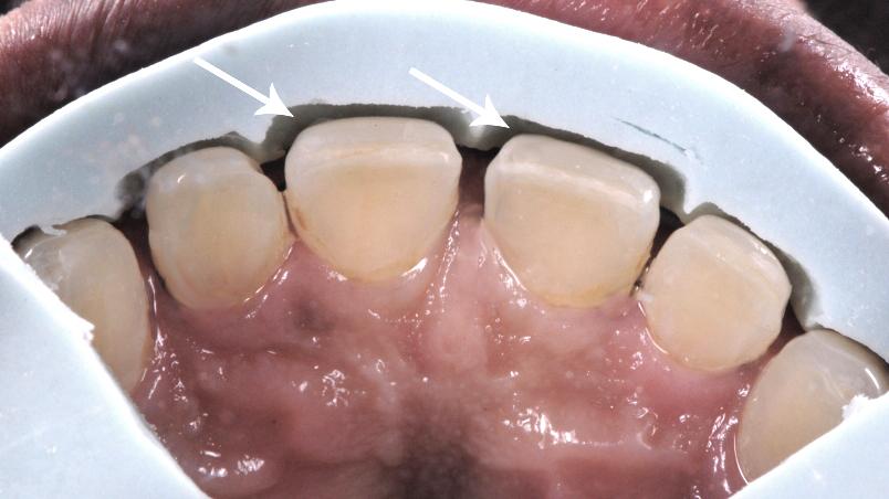 Facetas em porcelana e desgastes nos dentes claro