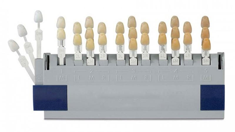 Clareamento dental caseiro ou laser