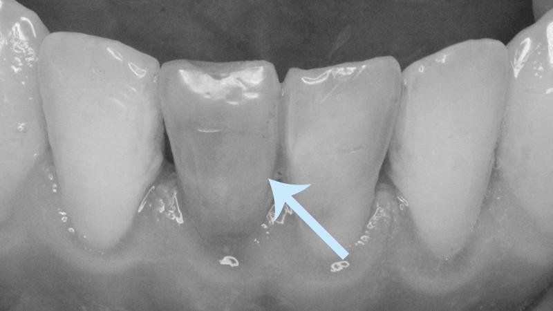 dente-acinzentado-por-tratamento-de-canal