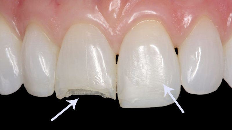 durabilidade-facetas-e-lentes-de-contato-dental
