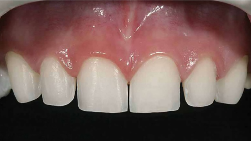 facetas em porcela desgastes dentes exemplo