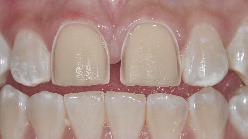 facetas em porcelana desgastes dentes