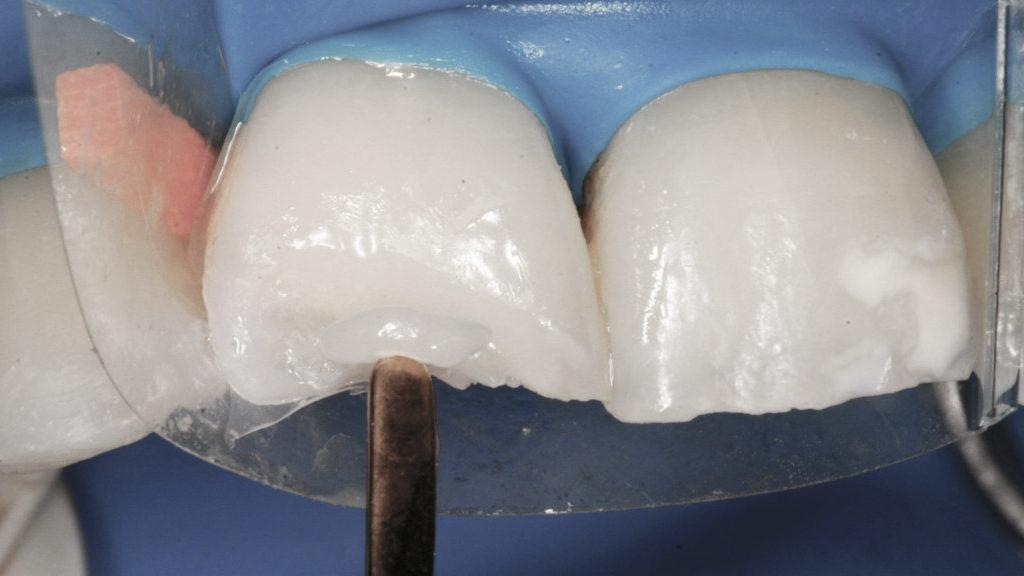restauração-com-resina-de-dentes-desgastados-por-bruxismo capa