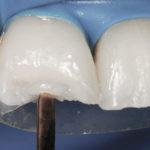 Restauração em dentes anteriores desgastados pelo bruxismo.