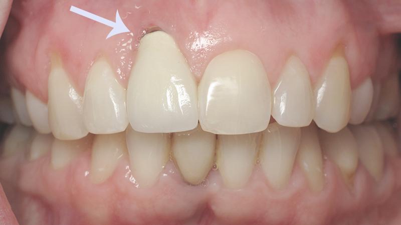 estetica-com-proteses-dentarias-sobre-implantes-gengiva