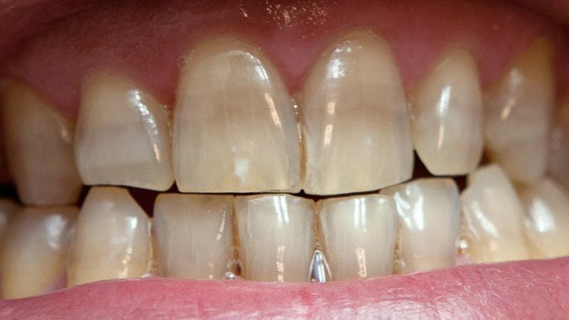 dentes manchados e escurecidos facetas e lentes