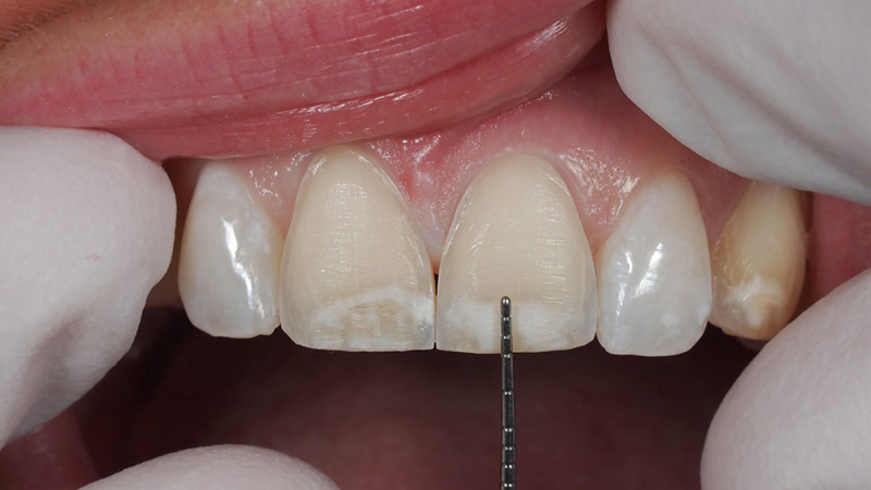 desgaste dentário diferença entre facetas e lentes contato dental