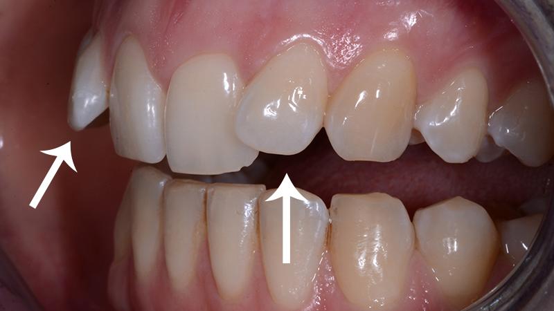 dierença entre faceta e lente dente torto