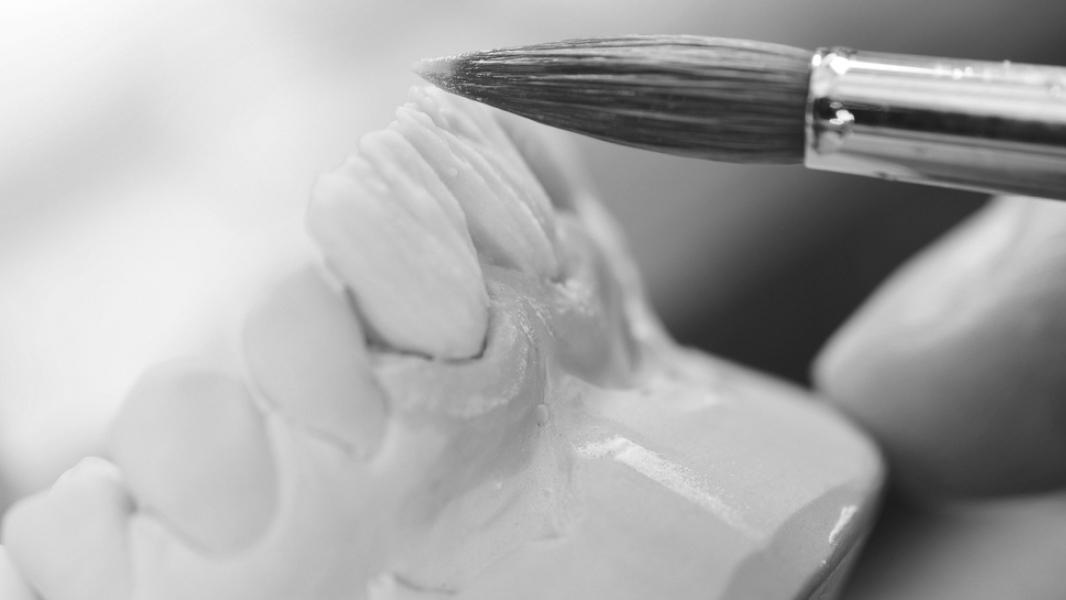 diferença entre faceta em resina e porcelana #6