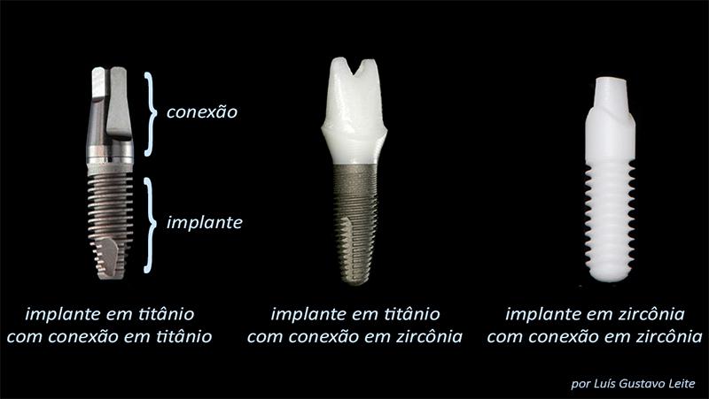 estetica-em-protese-dentaria-sobre-implante-pilares