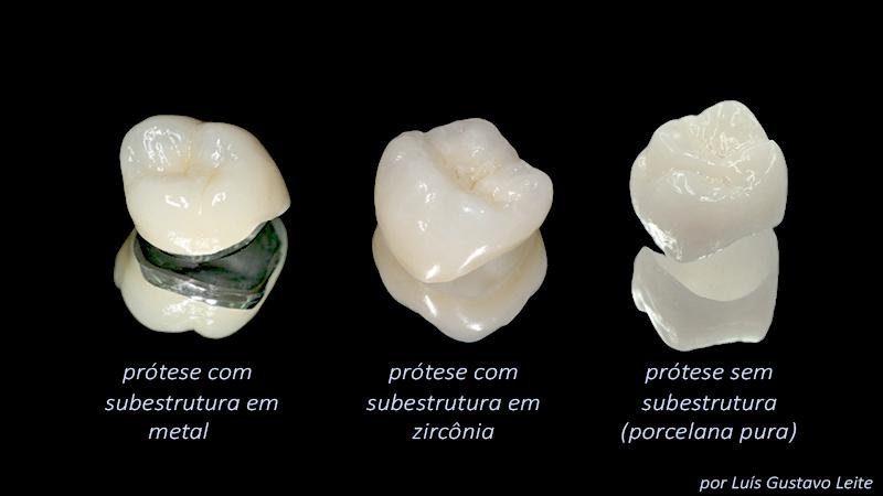 estetica-em-protese-dentaria-sobre-implante-tipos