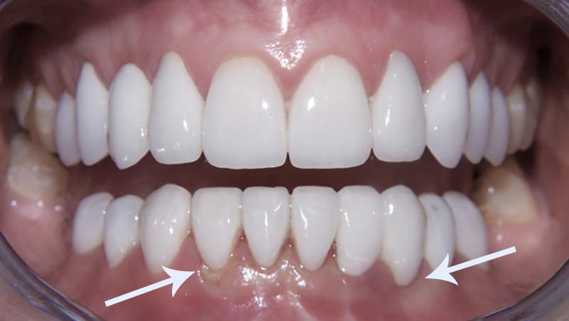 11eea76c5 Tratamento para substituir facetas e lentes é segura aos dentes.
