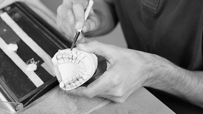 Lãminas em porcelana protético