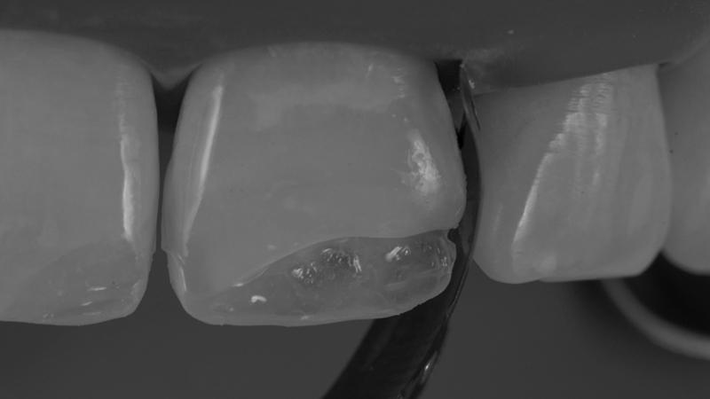 troca-restauração-dentes-anteriores-resinas