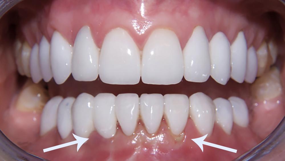 facetas-dentarias-associadas-a-sangramento-gengival