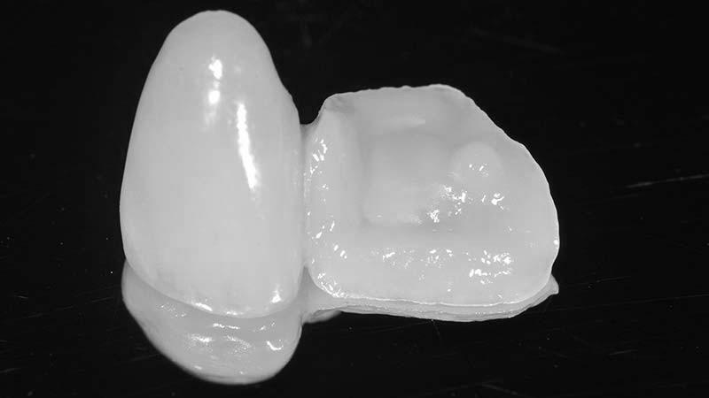 protese-dentária-em-criança-cantlever