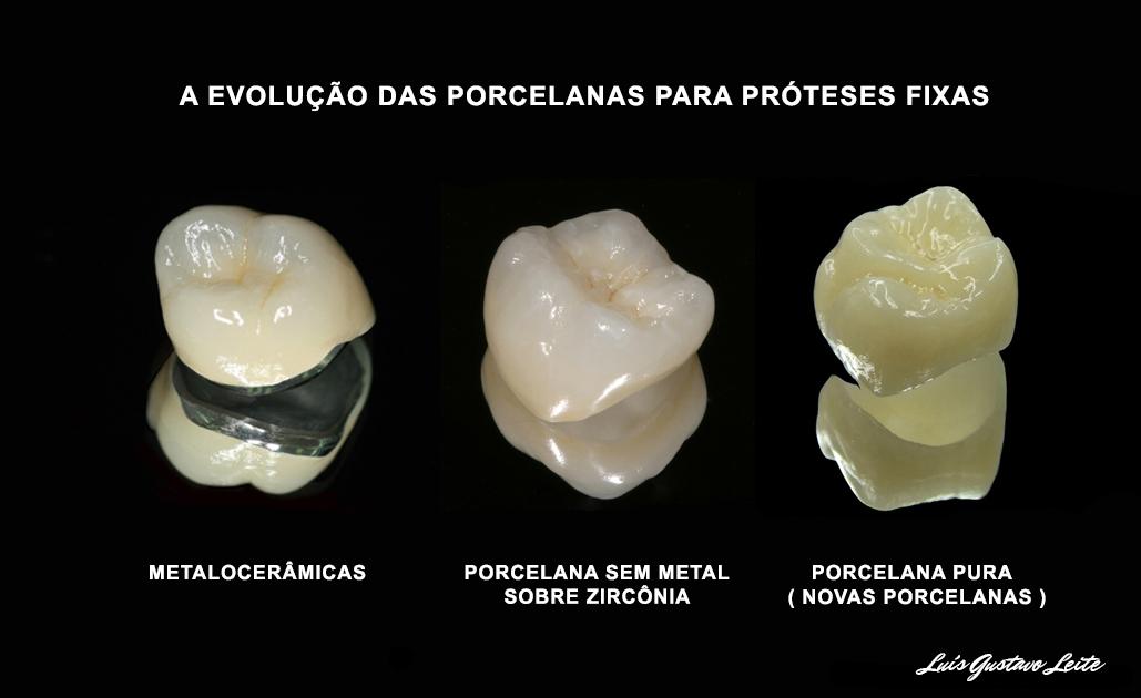 Novas porcelanas : mais translucidez e naturalidade na reprodução das cores dentárias.