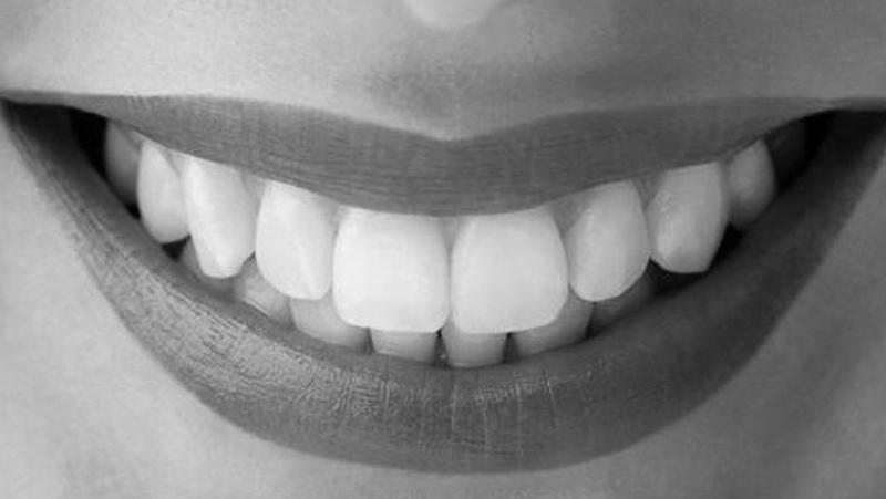 cirugia gengival sorriso modelo