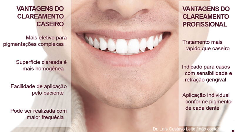 clareamento dentário de efeito indicações