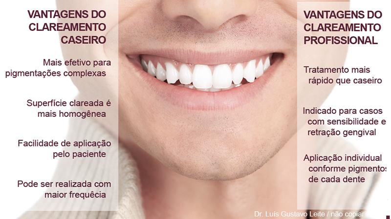 Indicacoes E Vantagens Do Clareamento Dentario Ao Paciente