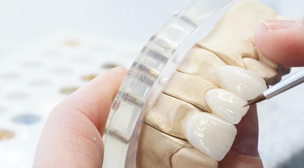 Próteses Dentárias Fixas - Novas Porcelanas