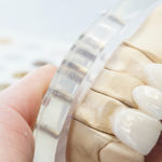 Próteses dentárias fixas estão com novas técnicas e porcelanas.