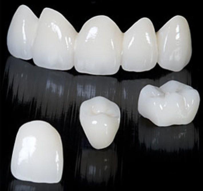 Test-drive : visão antecipada do planejamento do dentista para tratamentos com facetas em porcelana.