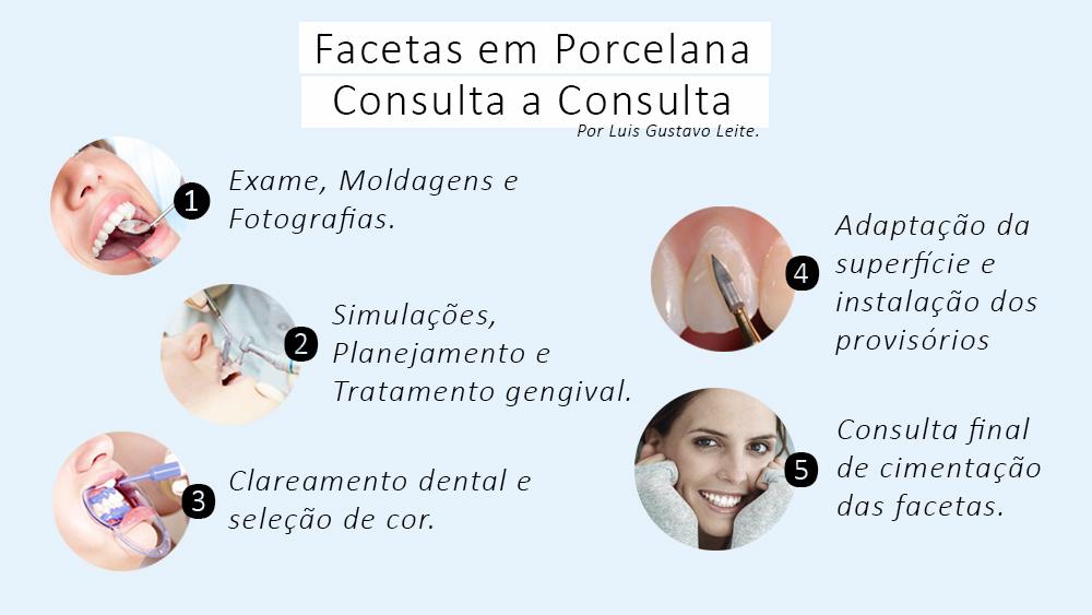 Facetas e Lâminas em Porcelana: sequência resumida de consultas em transformações nos seis dentes anteriores.